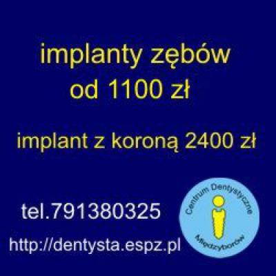 Implanty zębów 1100zł (z koroną 2400zł)